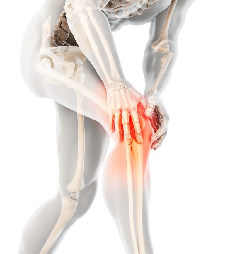 Jumper's Knee Solution